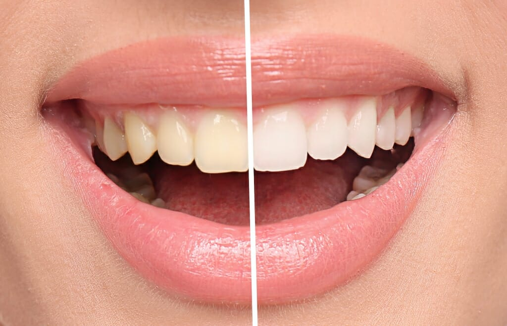 Zoom Whitening Before & After